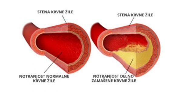 holesterol in krvne žile