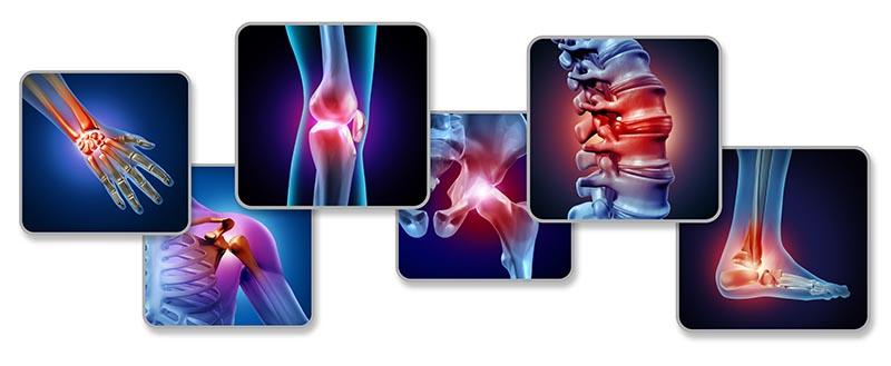 kateri sklepi so najpogosteje boleči