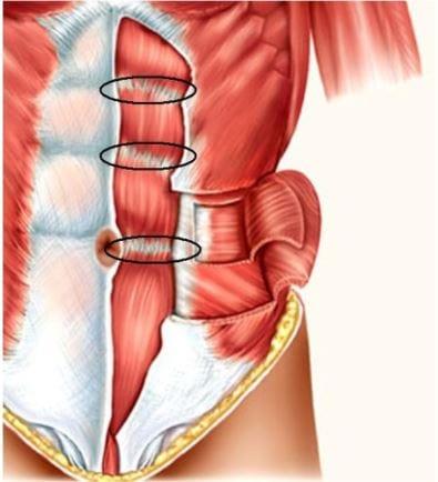 kitaski vložki - trebušne mišice