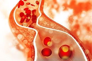 vlaknine pomagajo do optimalnih vrednosti holesterola