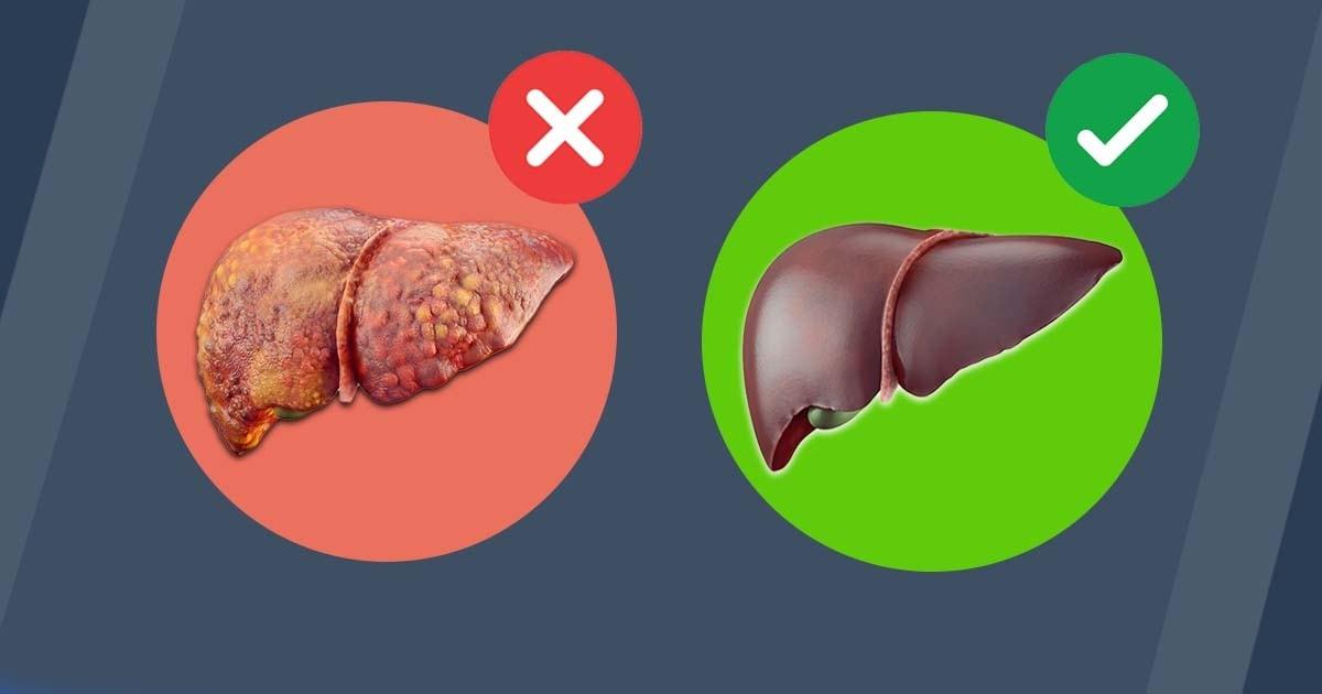 Čiščenje jeter – tako se znebiš maščobe na trebuhu